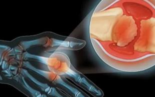 Артрит и рак провоцируют некоторые продукты