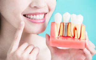 Качественная имплантация зубов в стоматологической клинике «Виодент»