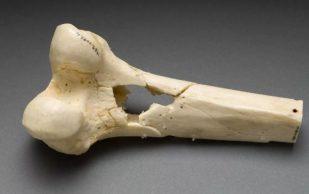 14 важных советов для укрепления костной ткани и замедления процесса старения костей