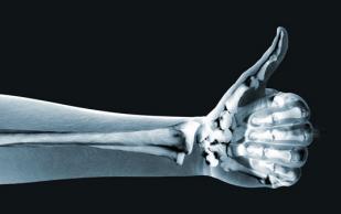 Остеопороз — это цинга костей, а не дефицит кальция
