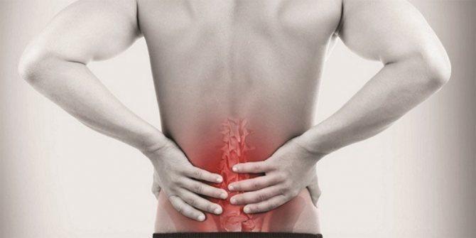 5 травяных рецептов для уменьшения боли и воспаления при радикулите