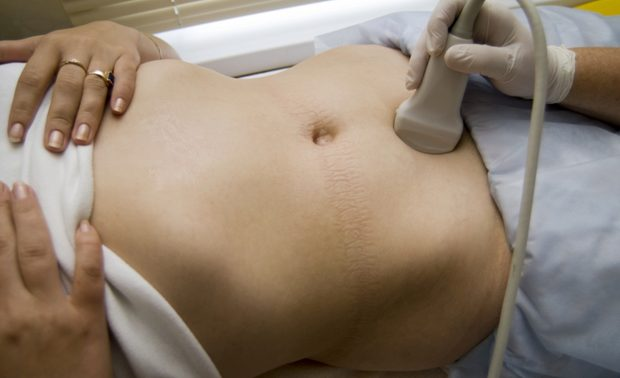УЗИ таза: безопасная и точная диагностика