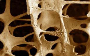 Витамин С спасет от остеопороза