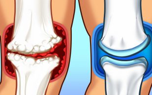 6 натуральных средств для облегчения состояния при болях в суставах