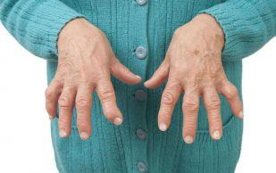 6 соков, которые помогут при артрите