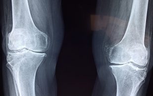Ученые создали материал, сильно упрощающий лечение переломов