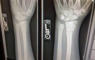 Новый биоматериал поможет в восстановлении костей