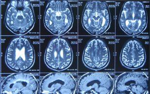 МРТ головного мозга как залог здоровья