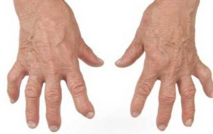 Продукты, которые помогут справиться с болью и воспалением при артрите