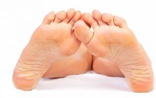 Пяточная шпора: лечение с помощью натуральных средств