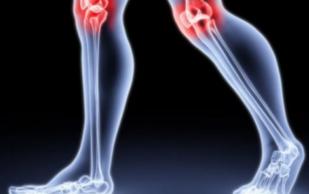Угроза артрита. Какой чай поможет сохранить хрящи и кости?