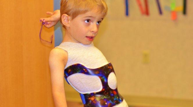 Самодиагностика сколиоза у ребенка