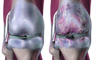 Бисфосфонаты могут принести пользу пациентам с остеоартритом