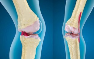 Натуральный рецепт, улучшающий функции суставов с обезболивающим эффектом