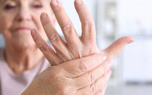Как распознать ревматоидный артрит и почему не стоит пренебрегать этим недугом