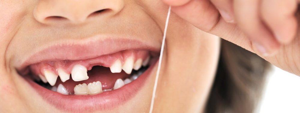 Потеря молочных зубов у детей