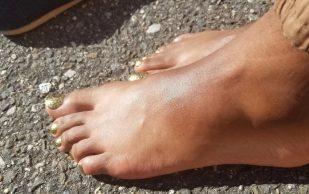 Как спасти ноги от отеков и болей