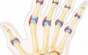 Созданная в лаборатории молекула помогает лечить артрит