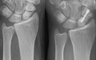 Гипс и операция оказались одинаково эффективны при переломах запястья