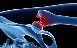 Могут ли лекарства от остеопороза разрушать кости