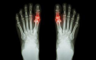 Определены продукты, которые снижают риск заболевания суставов