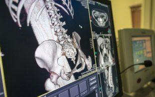 Проверка на прочность: остеопорозу брошен вызов?