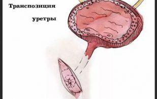 Эффективное лечение женских болезней