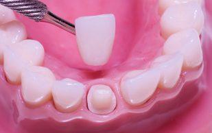 Качественные зубные протезы