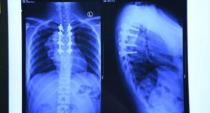 Неврологи установили, как можно справиться с параличом при травмах позвоночника