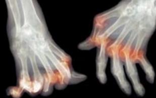 Основные поражения суставов