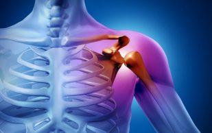 Боль в плече: 3 наиболее распространенных причины и как решить проблему