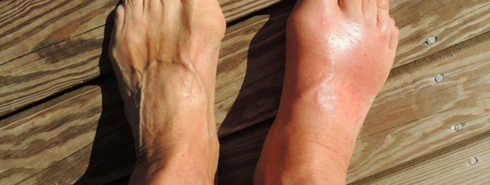Доступное натуральное средство от боли и воспаления при подагре