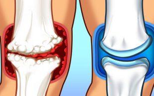 Артрит: три бесплатных средства от боли и воспаления суставов