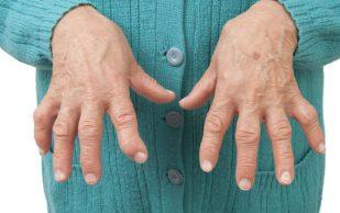Ощущения в пальцах, которые указывают на развитие артрита