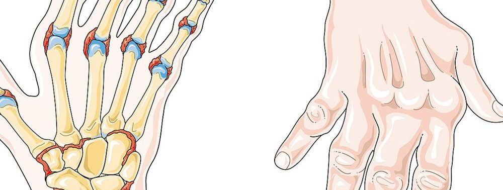 Для лечения ревматоидного артрита появились новые мишени