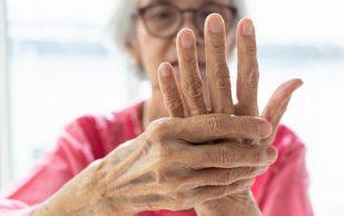 Как облегчить симптомы артрита в домашних условиях
