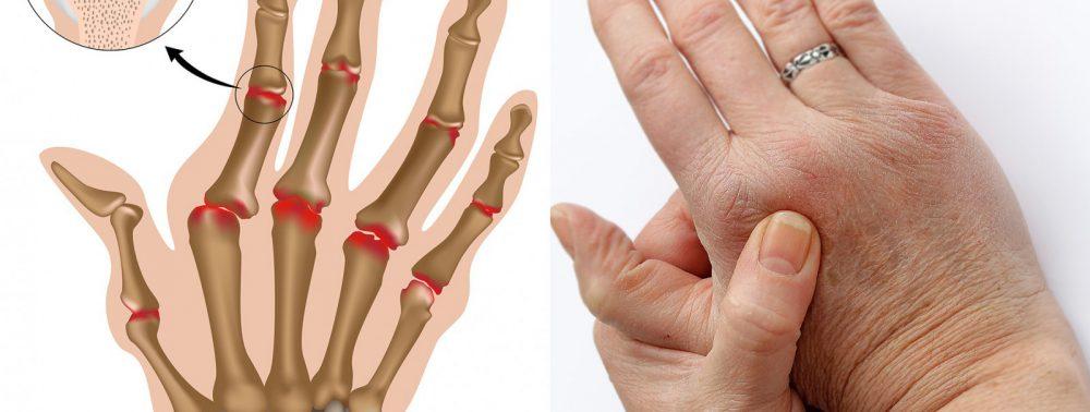 Почему болят суставы пальцев рук