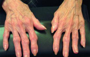 Остеоартроз суставов кистей