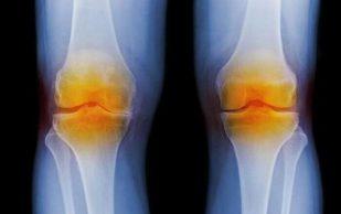 Хондроматоз костей и суставов