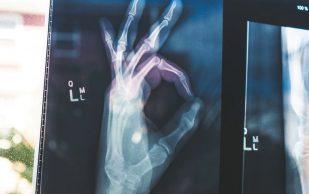 Кишечный микробиом влияет на прочность костей