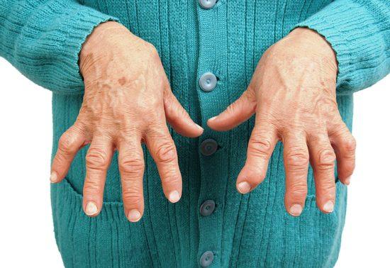 Что указывает на ревматоидный артрит? Эксперты называют два неожиданных признака