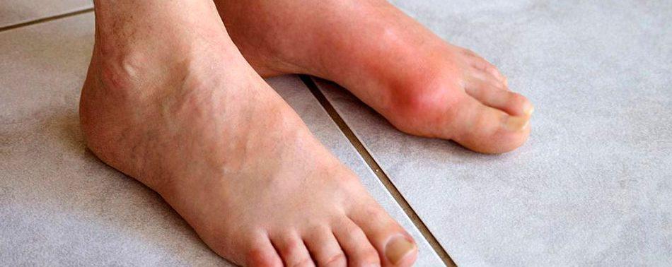 Подагра: типичные симптомы развития