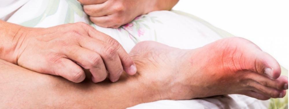 Подагра: причины возникновения и помощь при остром приступе