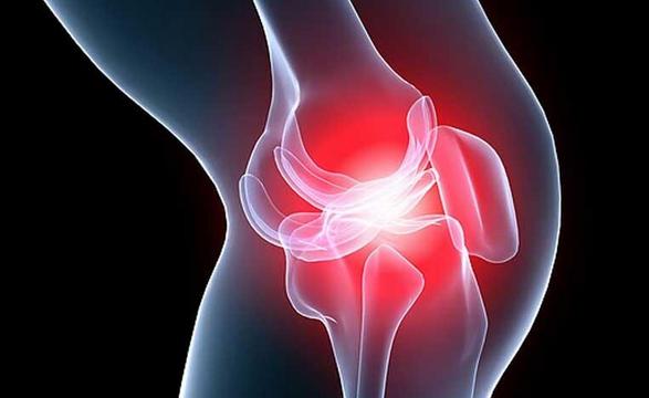 Медики назвали первые симптомы болезней суставов