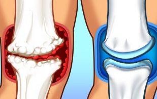 Топ-8 продуктов, способных стать причиной боли в суставах