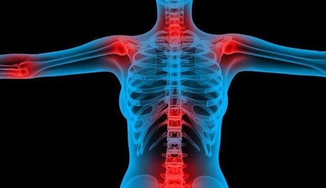 Медики выяснили, какие заболевания могут вызвать проблемы с суставами