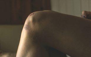 Ученые назвали способ предотвратить замену коленного сустава