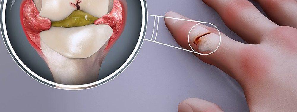 Ученые могут улучшить лечение ревматоидного артрита
