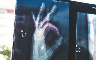 Имплантаты с антибиотиками могут помочь в регенерации кости