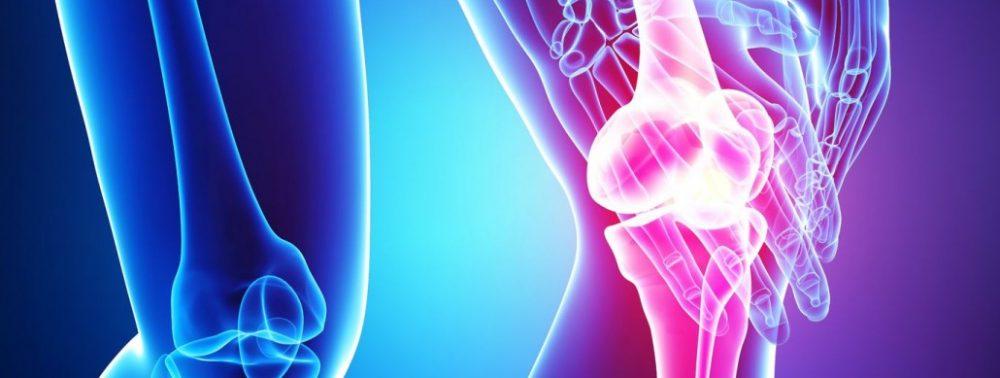 Лечение остеоартрита коленного сустава